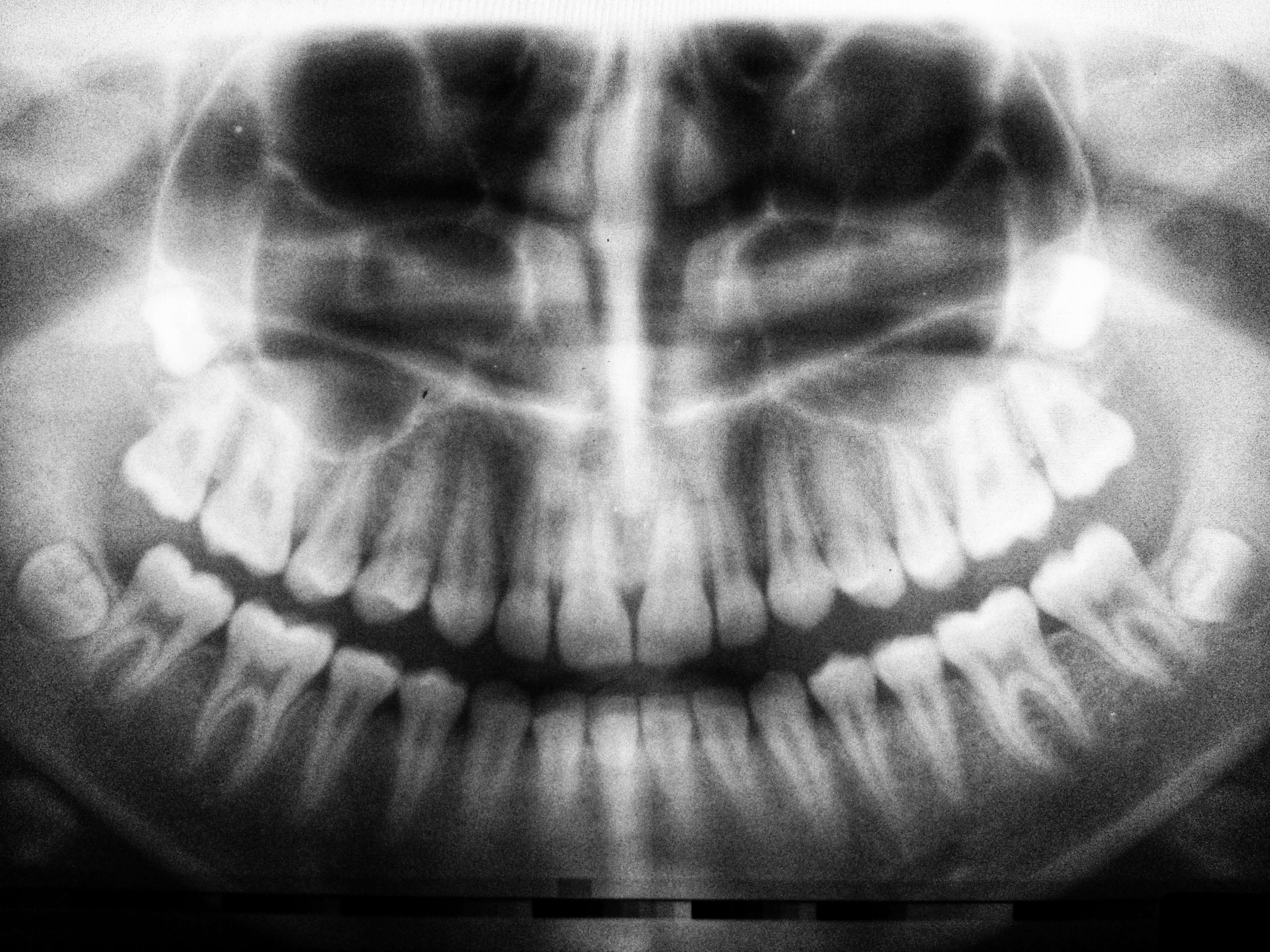dental emergency care in erie pa