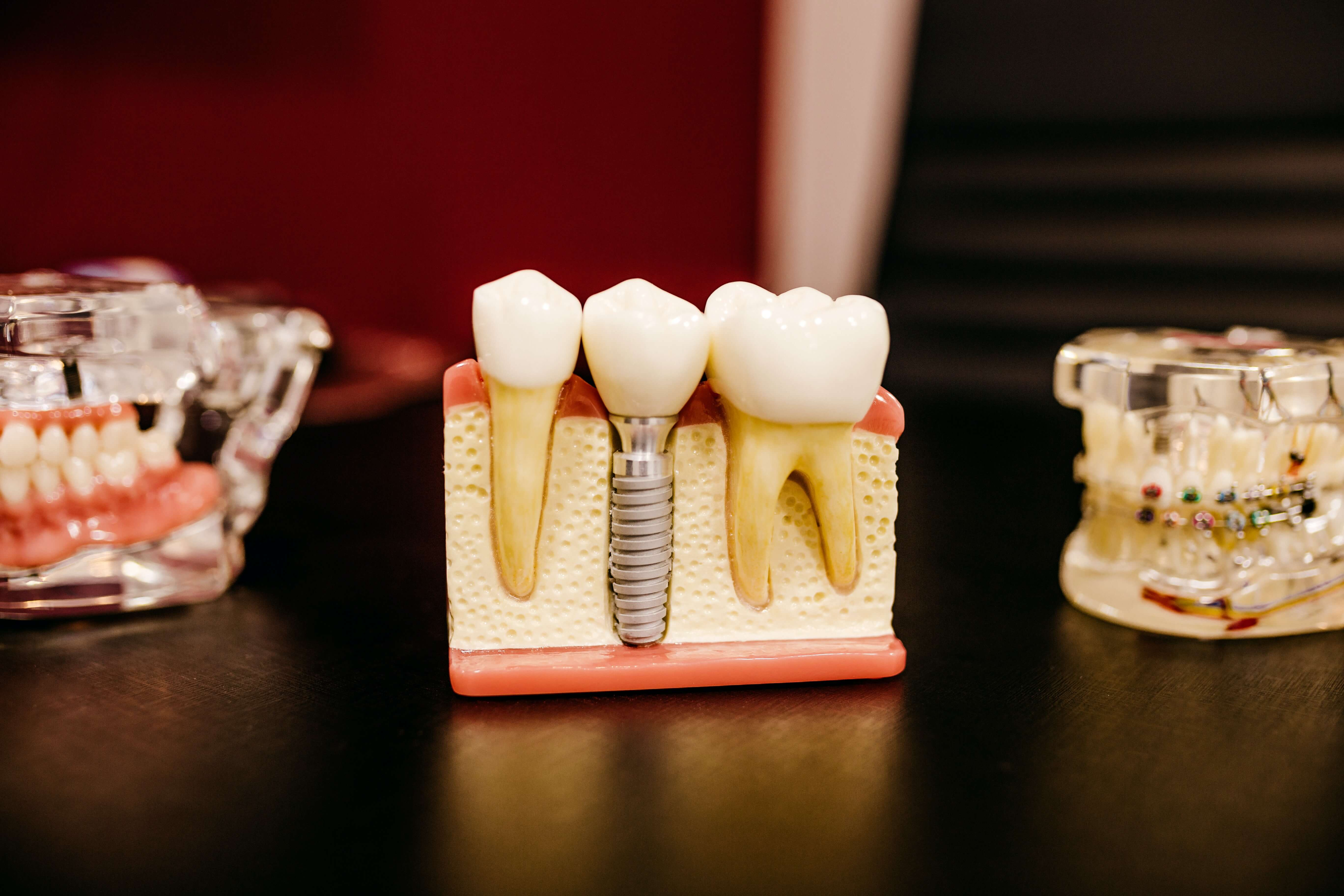 dental restorations and implants