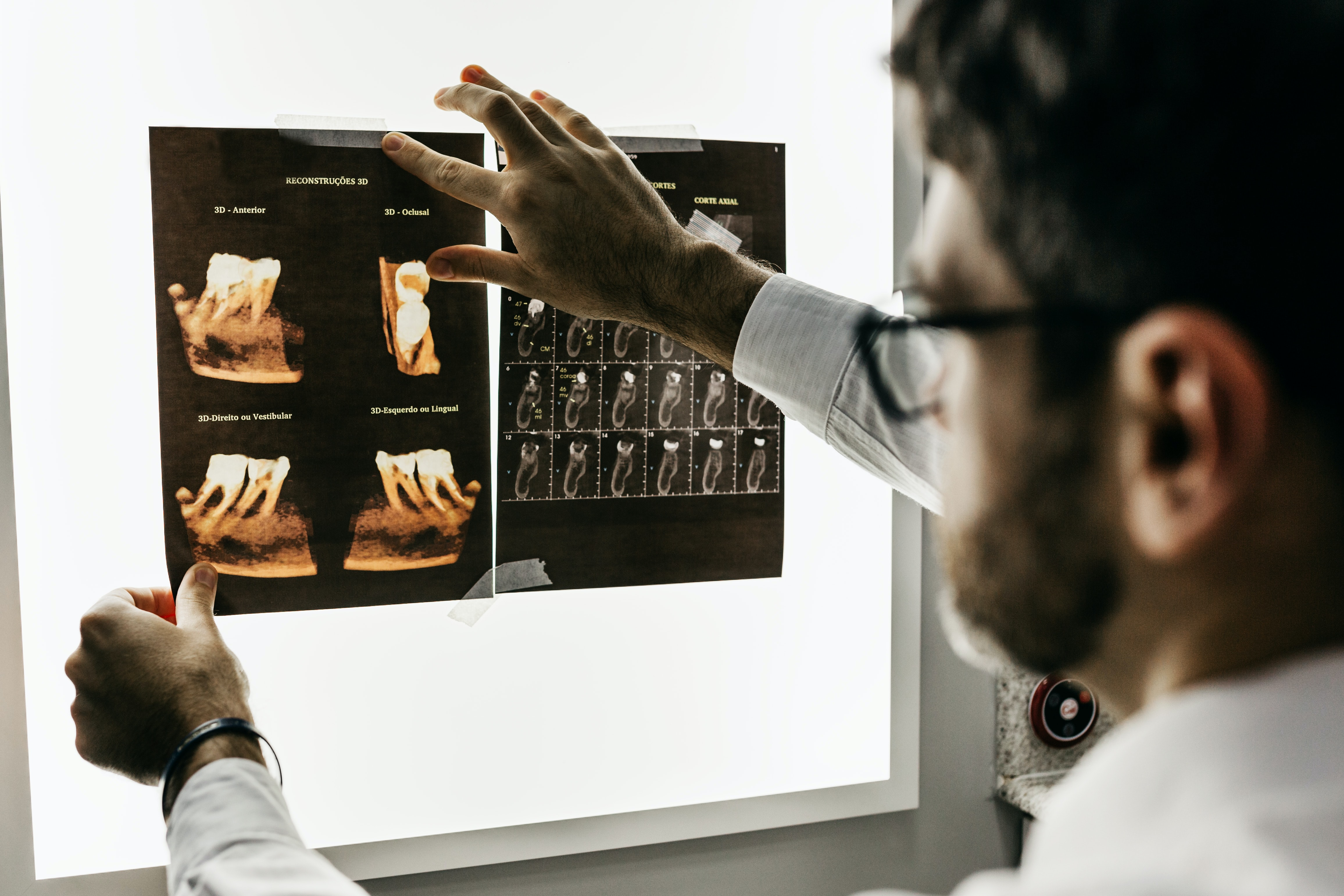 dentist holding up xrays of wisdom teeth on lightboard
